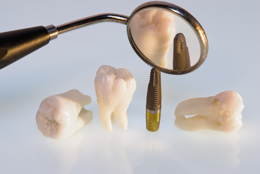 Latham dental implants