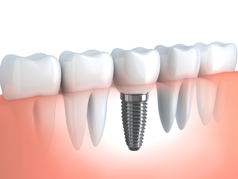 Capital Region dental implants