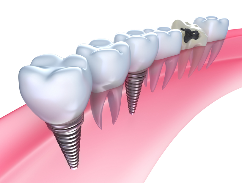 Scotia dental implants