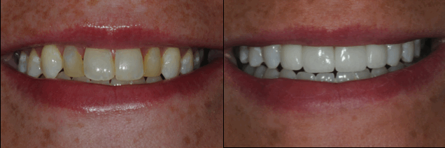 Capital Region porcelain veneers